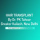 Hair Transplant by Dr PK Talwar in Greater Kailash Delhi