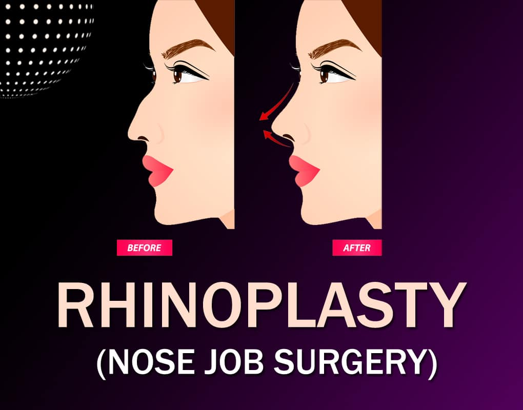 Best Rhinoplasty Surgery In India Cost Of Nose Job Surgery Delhi